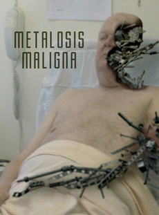metalosis-maligna-0-230-0-345-crop